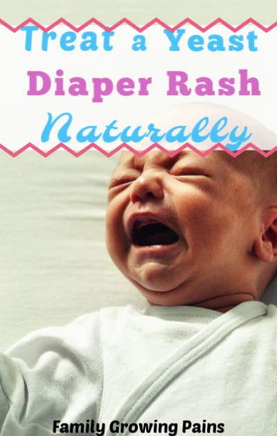 How to Treat a Yeast Diaper Rash » Family Growing Pains